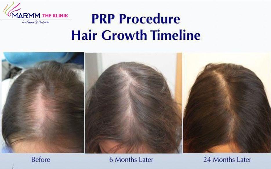 PRP Hair Treatment